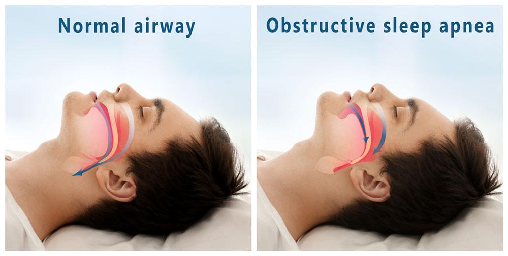 obstructive sleep apnea graphic